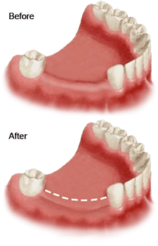 Bone Grafting & Sinus Lifts