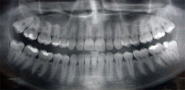 panoramic x-ray image